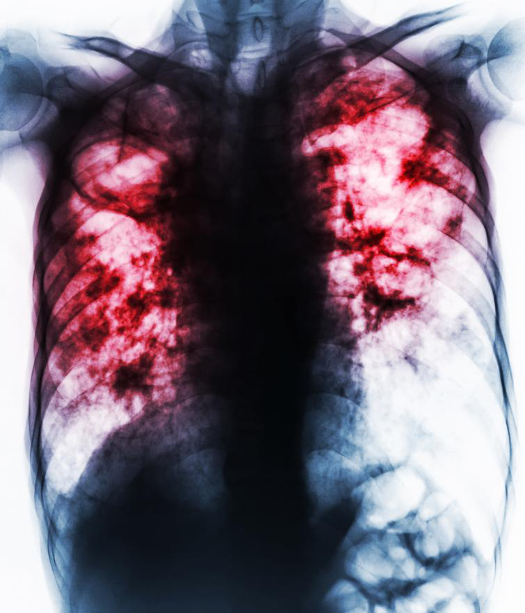Fibrosis Related Diseases - About Watson