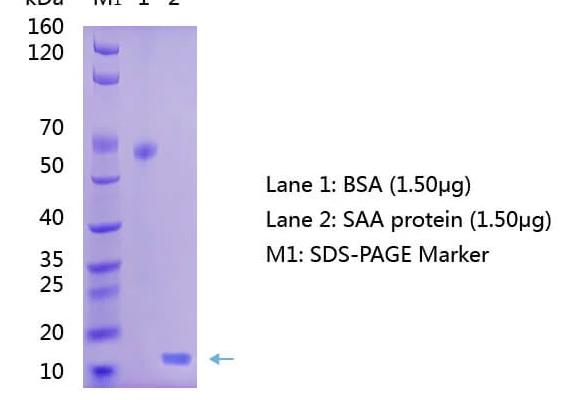 Anti-Serum Amyloid A (SAA) Antibody