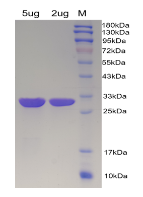 SDS PAGE - UltraNuclease CAS 9025-65-4